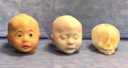 Cirurgia inédita com modelo híbrido de crânio é realizada no Sabará