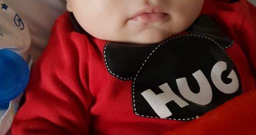 Bebê nasce com condição rara e cirurgia vira aula